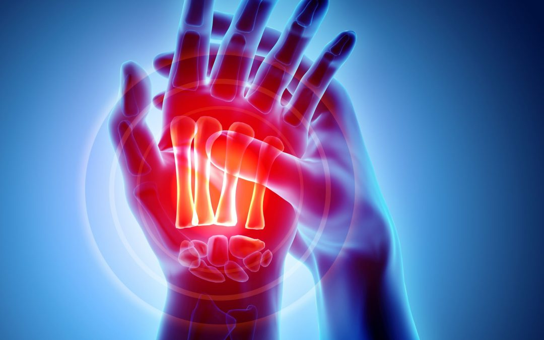 The New Science of Arthritis